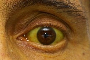 fièvre jaune symptômes