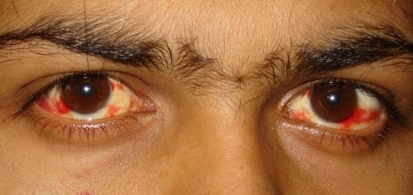 symptôme dengue