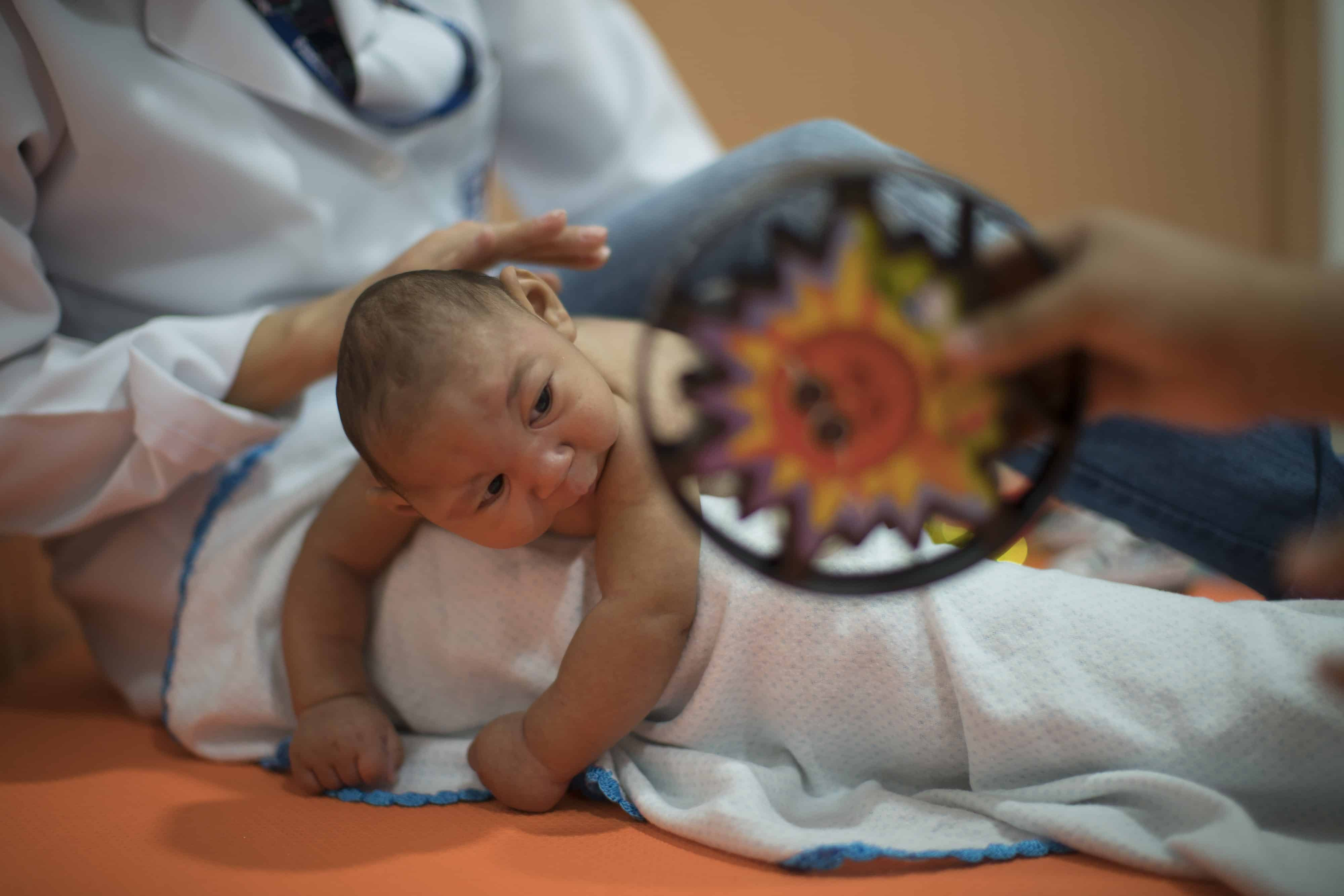 microcephalie zika