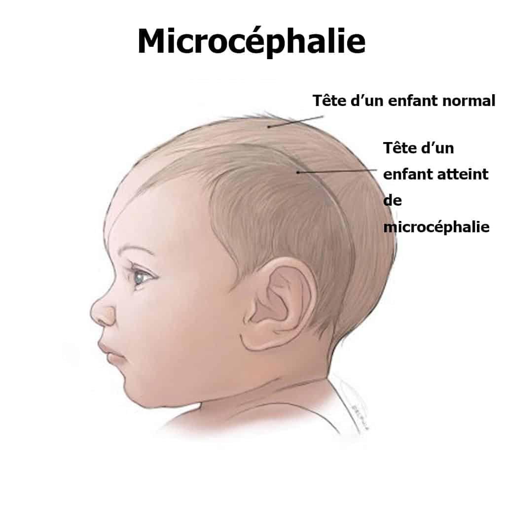virus zika microcéphalie